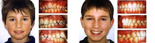 Engstand im Ober- und Unterkiefer, plus überzähliger Zahn